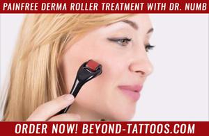 Painfree Derma Roller Treatment with Dr. numb