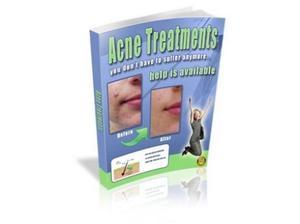 'Acne Treatments' handbook Ebook.pdf Guide in Skegness