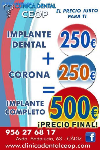 IMPLANTES DENTALES 250€:PRECIO ECONOMICO Y DE CALIDAD