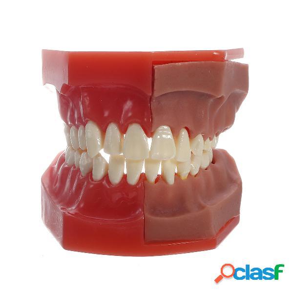 Dental herramientas Médico Modelo del modelo Dental Modelo
